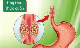 Các biểu hiện của ung thư thực quản
