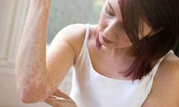 Bệnh chàm, cách phòng và trị