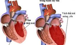 Những biến chứng của nhồi máu cơ tim và cách ngăn ngừa