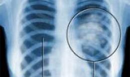 Ung thư phổi di căn chữa như thế nào?