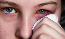 Dược thiện trị đau mắt đỏ