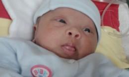 Cứu sống ca bệnh phổi kẽ hi hữu ở trẻ sinh non