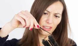 Trị rụng tóc do rối loạn nội tiết tiền mãn kinh