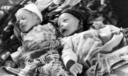 Bí ẩn cặp song sinh ra đời cách nhau 1 tháng ở Việt Nam