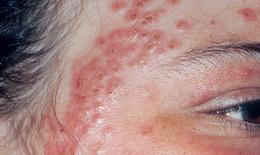 Bệnh chàm và bệnh phong