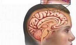 Nhận biết viêm màng não mô cầu
