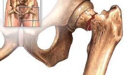 Hậu quả của loãng xương