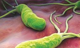 Bệnh viêm loét bờ cong nhỏ dạ dày