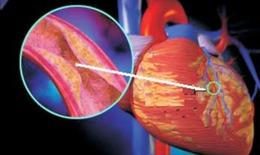 Gen làm tăng nguy cơ nhồi máu cơ tim