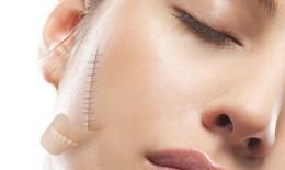 Điều trị sẹo lồi bằng tia xạ