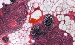 Bệnh tiêu cơ vân và biến chứng nguy hiểm