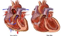 Thuốc chẹn beta giao cảm trong điều trị suy tim mạn: Những lưu ý khi dùng