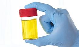 Cảnh báo bệnh lý từ màu nước tiểu