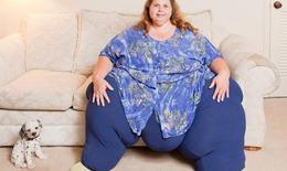 Ngồi nhiều nơi làm việc tăng nguy cơ béo phì ở phụ nữ