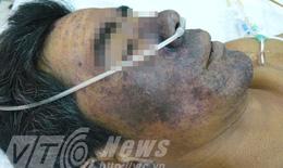 Ăn tiết canh nhiễm viêm cầu khuẩn lợn, doanh nhân suýt mất mạng