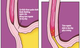 Trào ngược dạ dày - thực quản, bệnh hay chẩn đoán nhầm