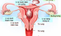 Đe dọa tính mạng vì chữa u xơ tử cung theo phương pháp dân gian