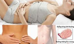 U nang buồng trứng, bệnh thường gặp của phụ nữ