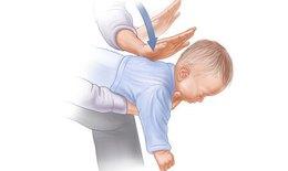 Sơ cứu suy hô hấp do dị vật đường thở ở trẻ em