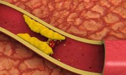 Xơ vữa động mạch và rối loạn cương dương