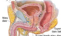 Viêm tuyến tiền liệt do vi khuẩn