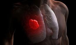 Nguyên nhân gây ung thư phổi