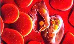 Ký sinh trùng sốt rét có thể trị... ung thư