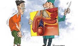 Giãn tĩnh mạch thừng tinh có nguy cơ gây vô sinh