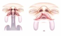 Chăm sóc răng miệng cho trẻ khe hở môi - vòm miệng