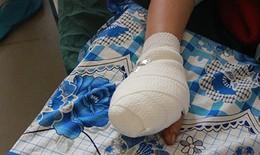 Một phụ nữ bị máy xay thịt nghiền nát bốn ngón tay