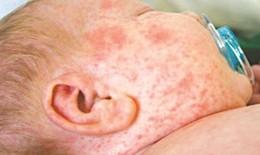 Bệnh sởi và biến chứng hô hấp
