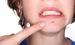 Bài thuốc trị mụn nhọt, đinh râu