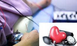 Điều trị tăng huyết áp bằng điện châm