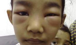 Hiểm nguy do thận hư ở trẻ em