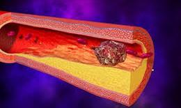Kỹ thuật mới giảm xơ vữa mạch máu