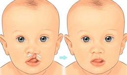 Ứng phó với sứt môi, hở hàm ếch