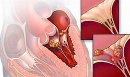 """Thực hư """"virus lạ"""" gây viêm cơ tim lây truyền từ người sang người"""