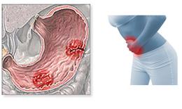 Tương tác thuốc trong điều trị loét dạ dày - tá tràng