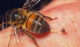 Việc cần làm ngay khi bị ong đốt