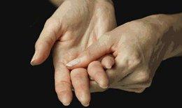 Bệnh thấp tim - Làm sao biết và tránh?