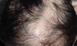 Rụng tóc do thuốc