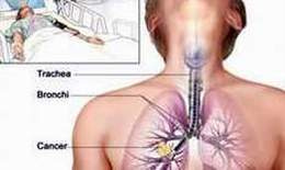 Tìm hiểu về hóa trị liệu