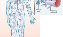 Bệnh u lympho ác tính không Hodgkin