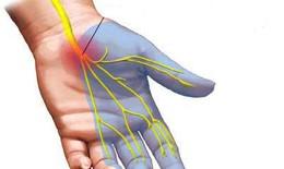 Tê tay chân do dùng thuốc và hướng điều trị