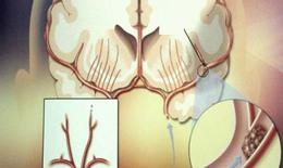 Trà thuốc cho người tăng huyết áp