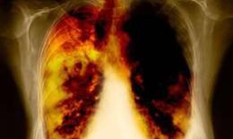 Ai dễ bị ung thư phổi?