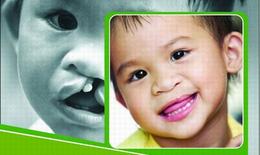 Phẫu thuật miễn phí cho 100 trẻ sứt môi, hở hàm ếch