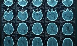 Thanh niên 37 tuổi huyết áp cao bất ngờ máu tràn não thất