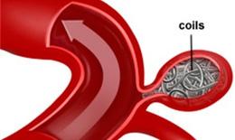 Nút coils cứu sống nữ bệnh nhân vỡ phình mạch não