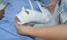 Nối thành công cổ tay trái bị đứt rời